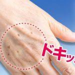 『手の甲のシミ』手を見れば年齢がわかる